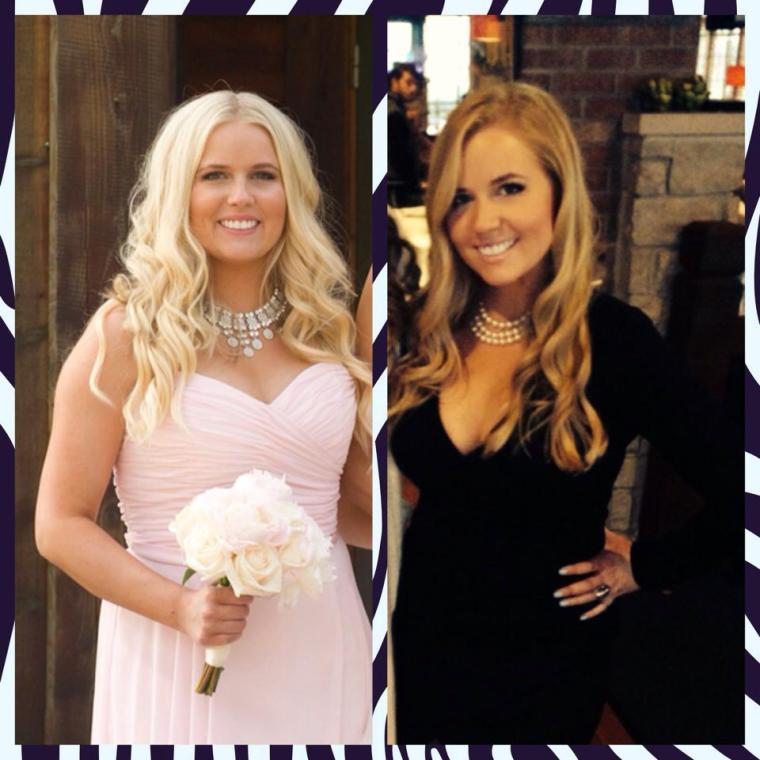 Shaina Gorden Before & After